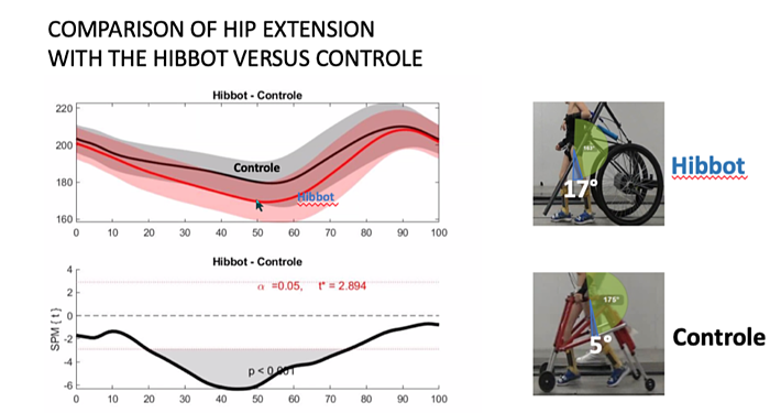 Comparison of hip extention-Hibbot-Versus-Controle